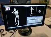 control esqueleto