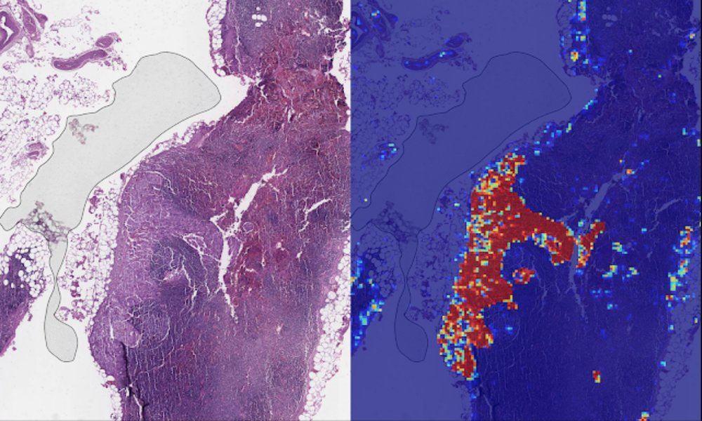 Inteligencia Artificial de Google detecta cáncer de mama con metástasis con 99% de precisión