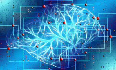 Desarrollan sistema de Inteligencia Artificial que ayuda a detectar aneurismas cerebrales